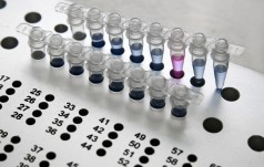Kiedyś pobraliśmy od pacjentki 70 komórek jajowych i potem zastanawialiśmy się, co z nimi dalej robić