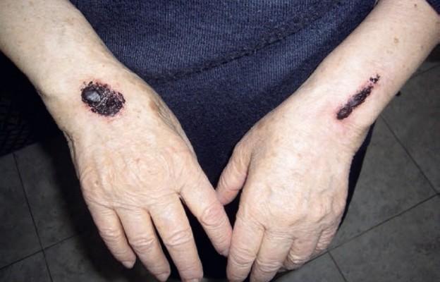 Natuzza Evolo otrzymała stygmaty, które sprawiały jej wiele bólu w okresie Wielkiego Postu