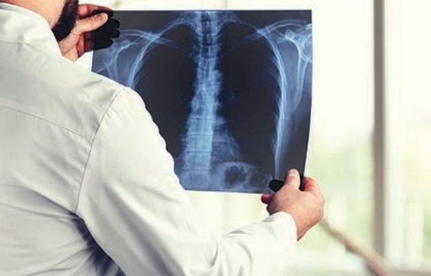 Program kontra rak płuca